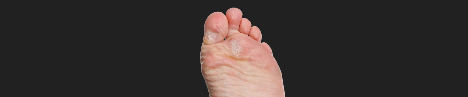 Callus & Corns | Witterings Mobile Foot Clinic